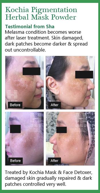 The testimonial before and after using Kochia pigmentation mask. This woman's face damaged by laser treatment, we use Chinese herbal mask to repair her face and healed the dark patches