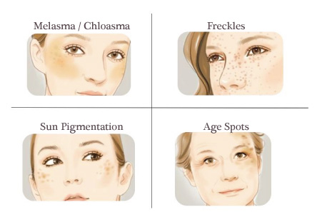 Melasma, freckles, sun pigmentation, age spots and other hyperpigmentation issues faced by women